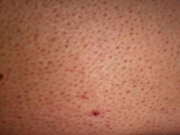 Keratosis Pilaris: The do's and dont's of caring for the condition