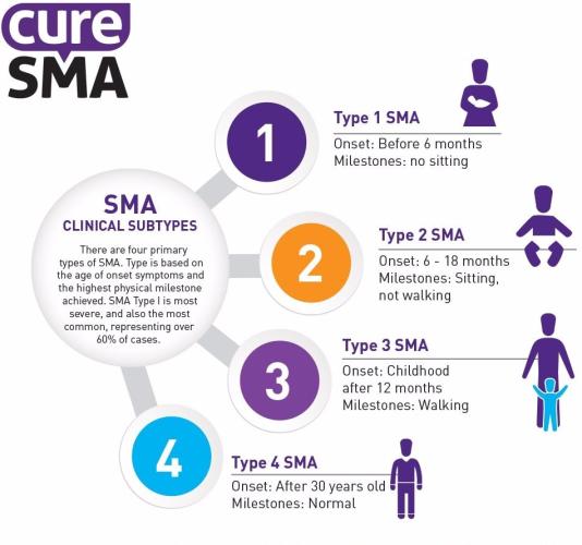 SMA-types-e1536103644514
