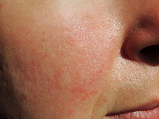 Rosacea: The do's and dont's of caring for the common skin