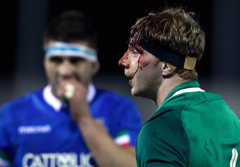 Martin Moloney bloodied during the game