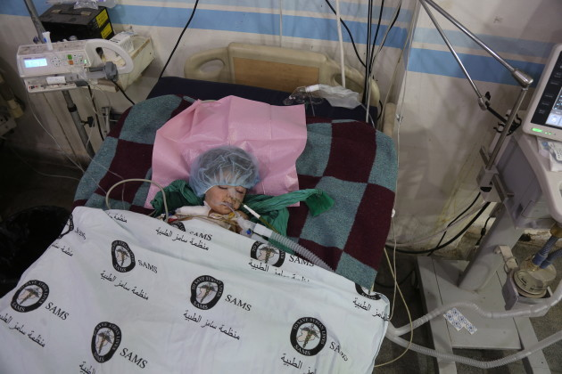 Injured children in Syria