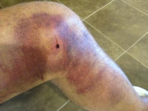 17 graphic images that prove sports injuries are worse than