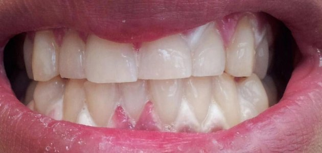 Fancy Getting Your Teeth Whitened You Need To Know This Thejournal Ie